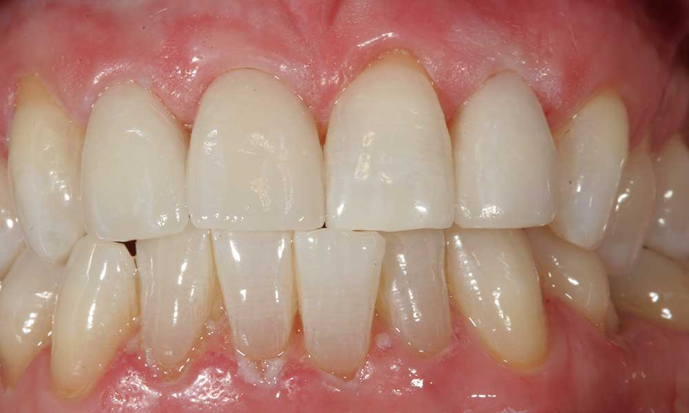 All-ceramic crowns - after