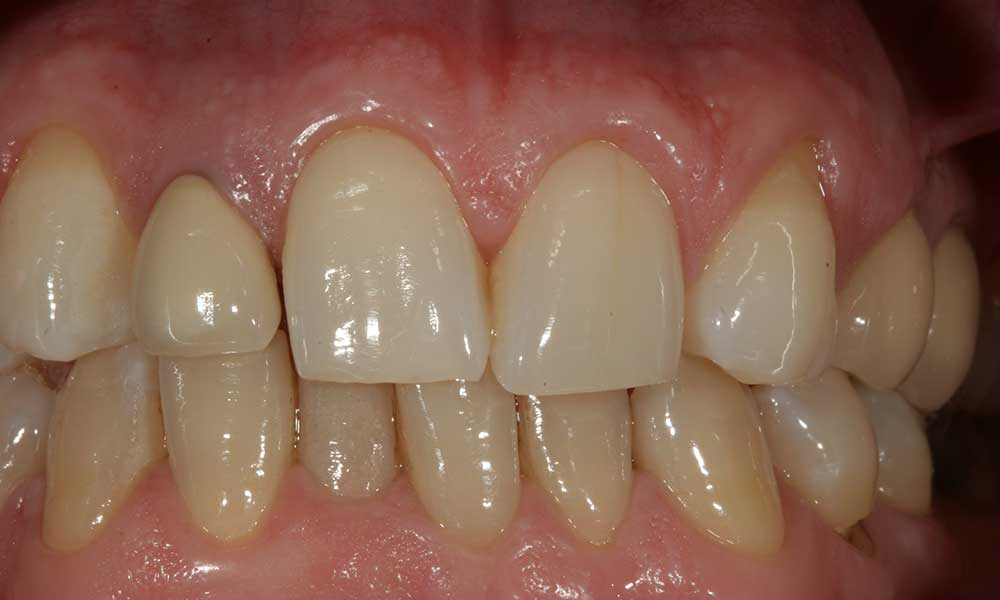 All-ceramic crowns - before